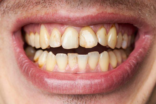 žuvací tabak zuby