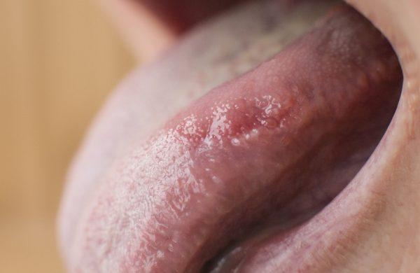 bolesť jazyka