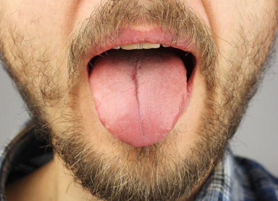 papily na jazyku
