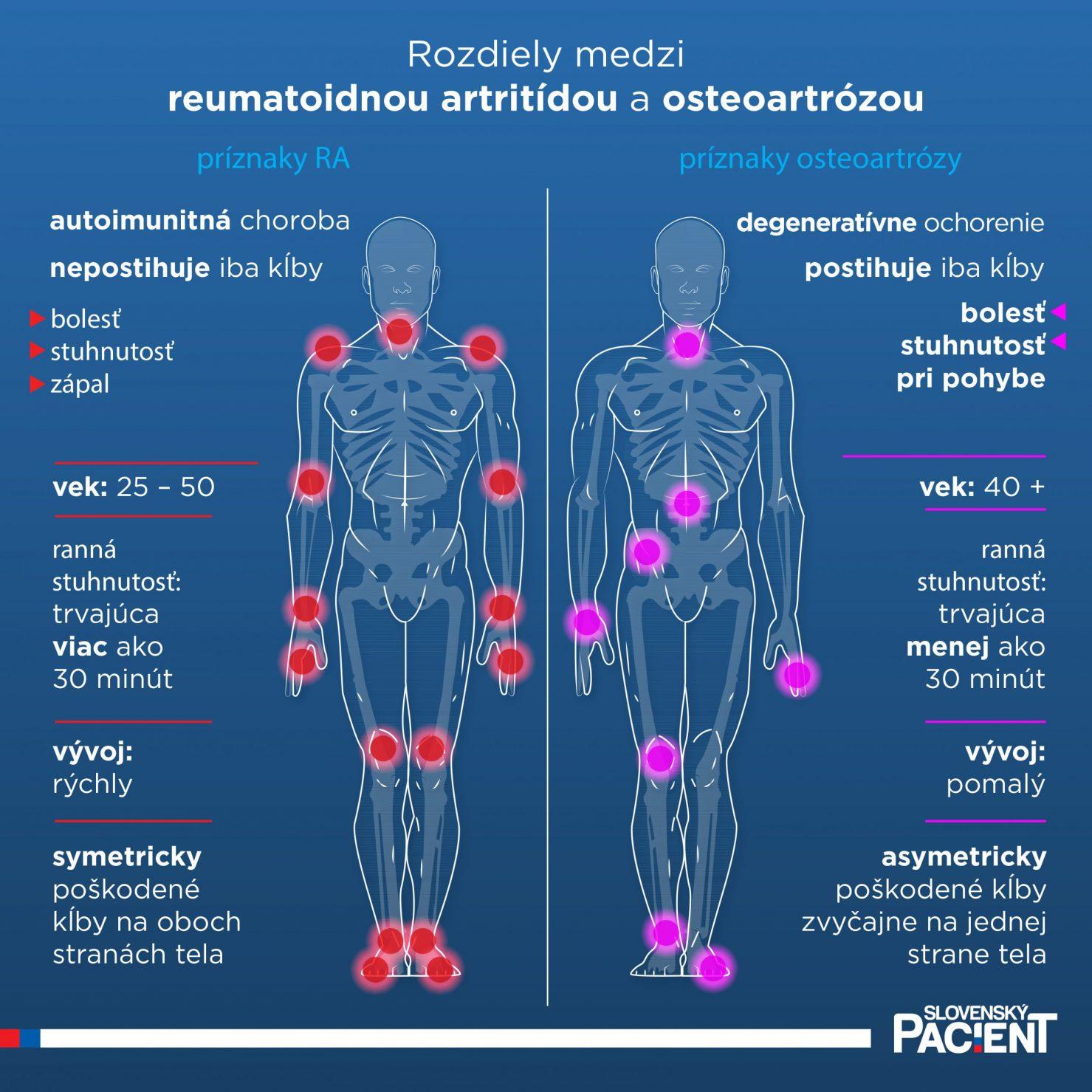 Rozdiely medzi reumatoidnou artrídou a osteoartrózou