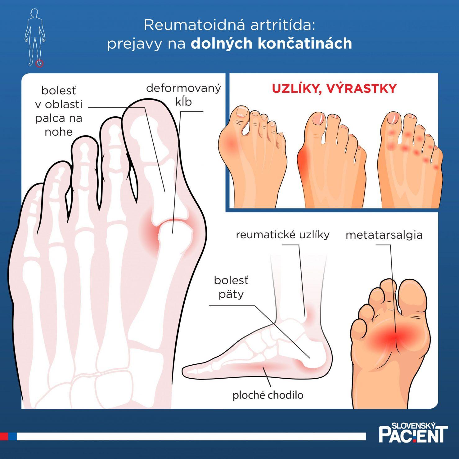 Prejavy reumatoidnej artrídy