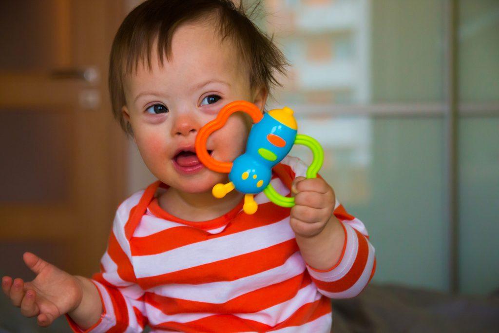Dieťa s Downovým syndrómom