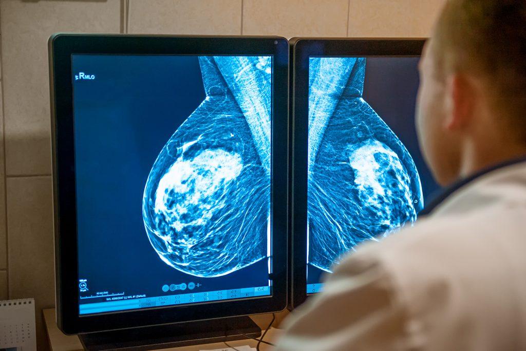Lekár posudzuje mamografickú snímku