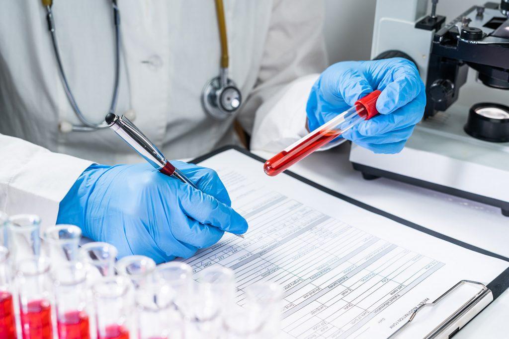 Záznam testovania krvi v laboratóriu