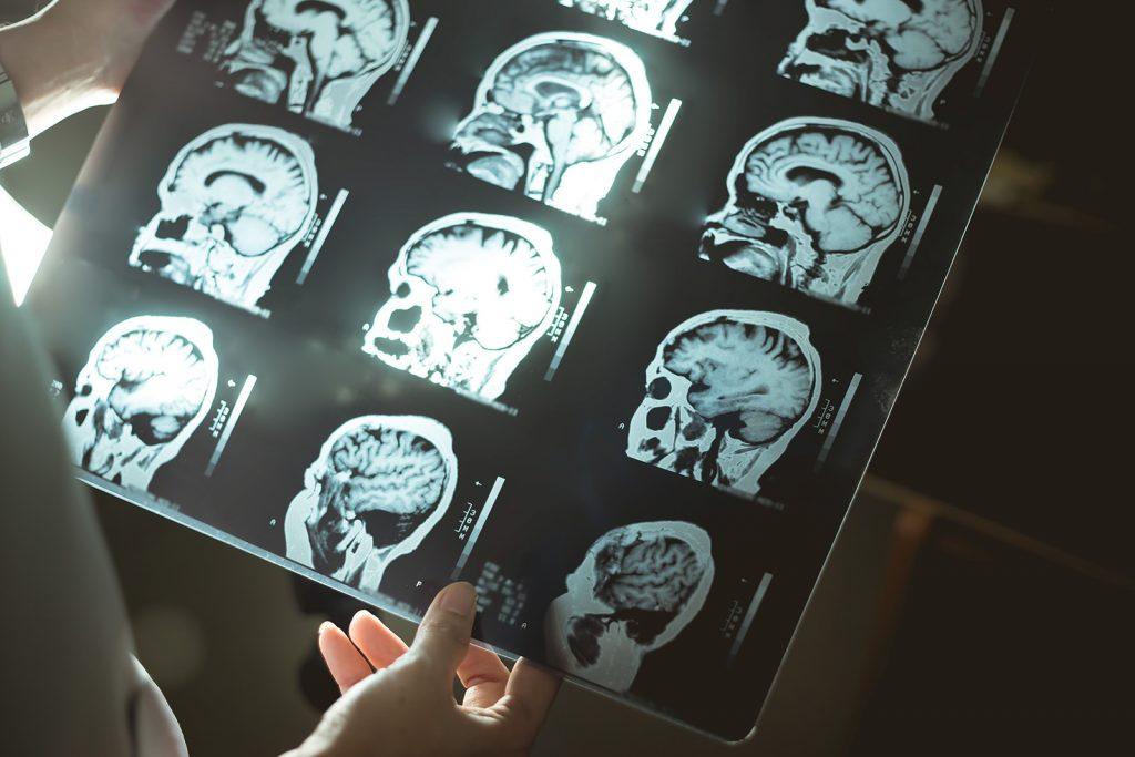 Lekár študuje MR snímku