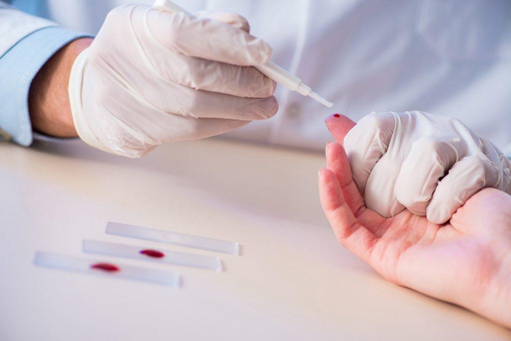 Odber krvi z prsta