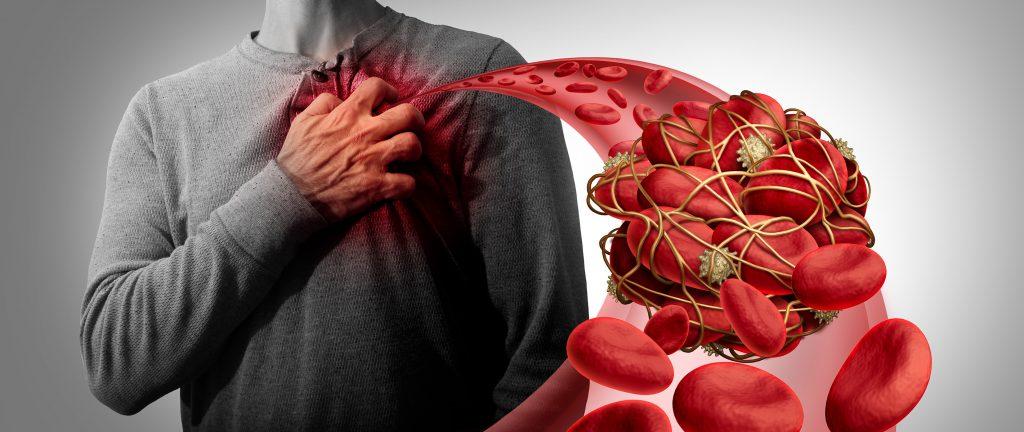 Krvná zrazenina
