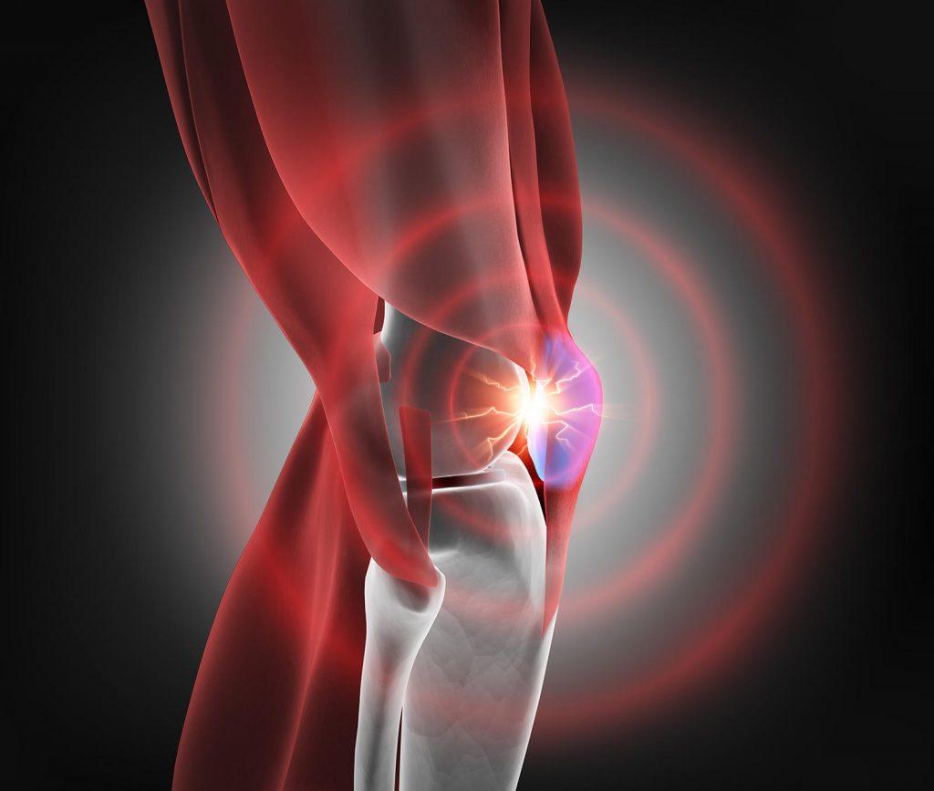 Vyžarujúca bolesť kolena