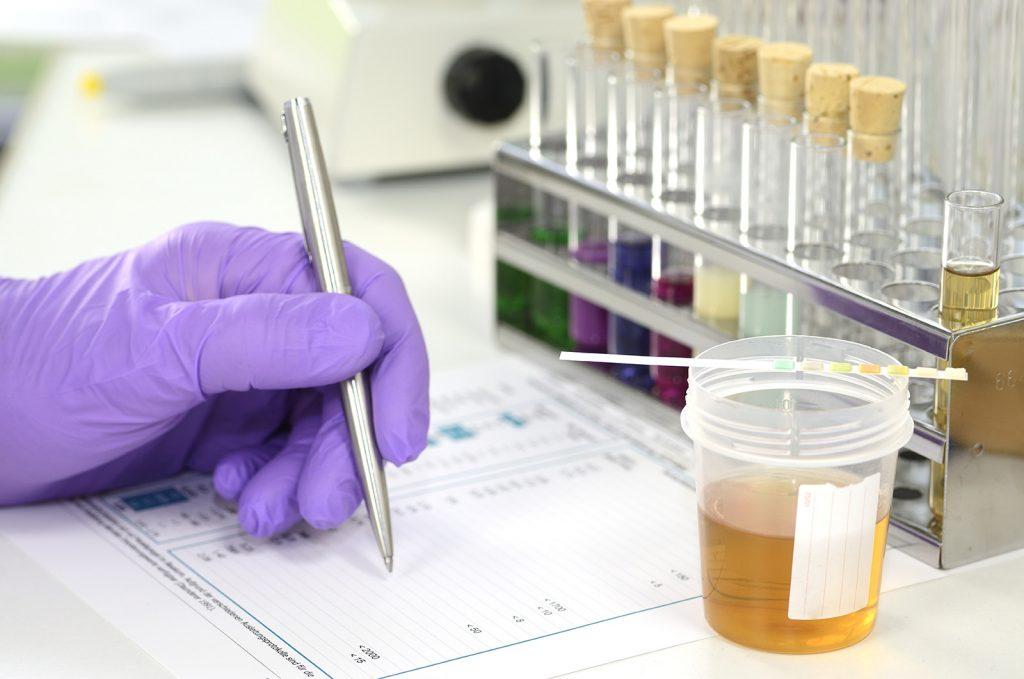 Vyšetrenie moču v laboratóriu